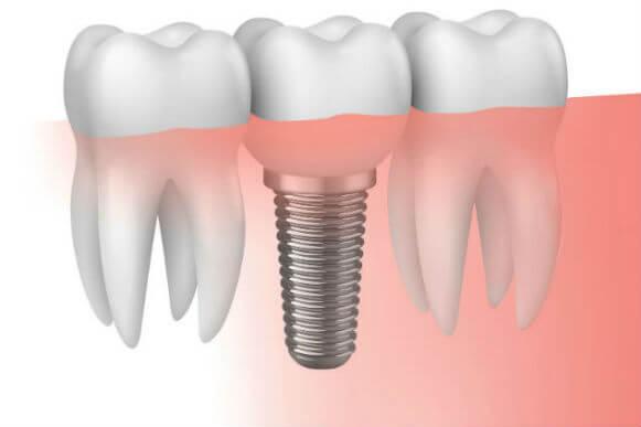 Descubre Las Claves De Un Buen Implante Dental Clinica