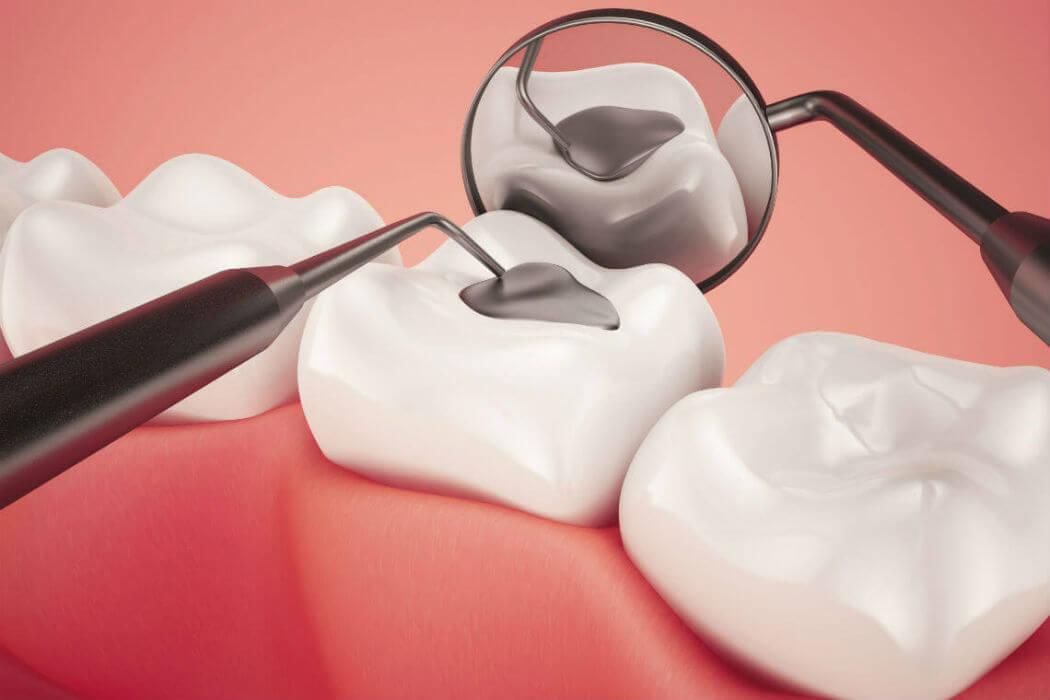 7 cosas que debes saber sobre los empastes dentales