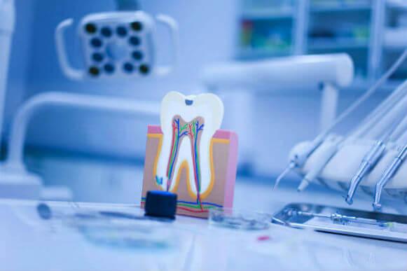 ¿Cuándo deberías realizarte una endodoncia?