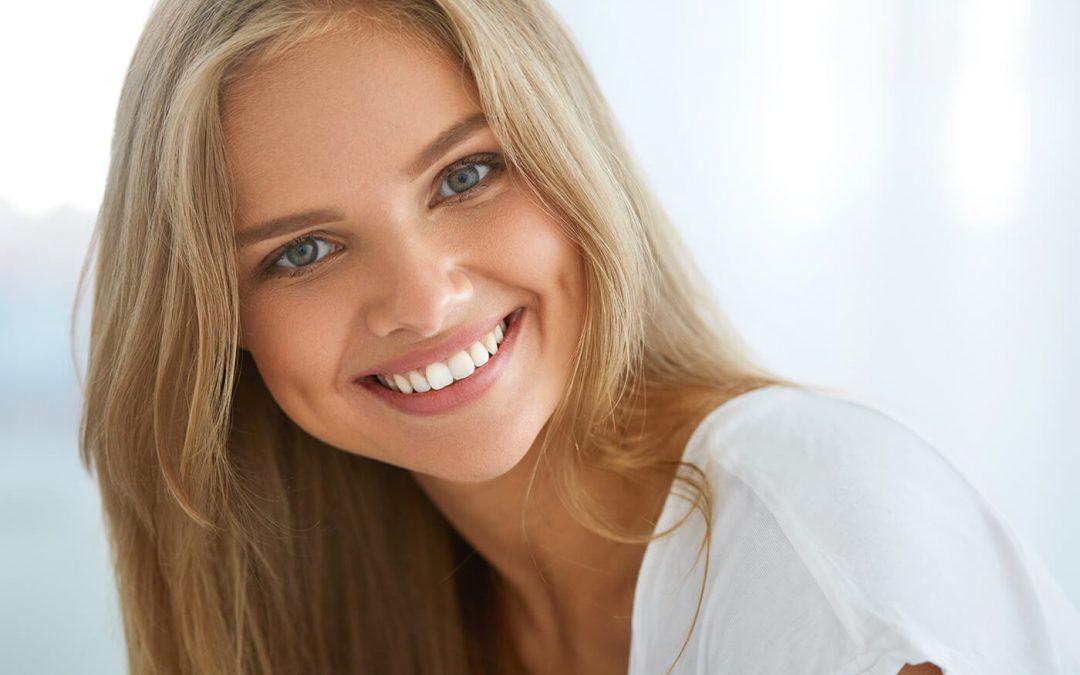 Carillas dentales: consigue la mejor versión de tu sonrisa