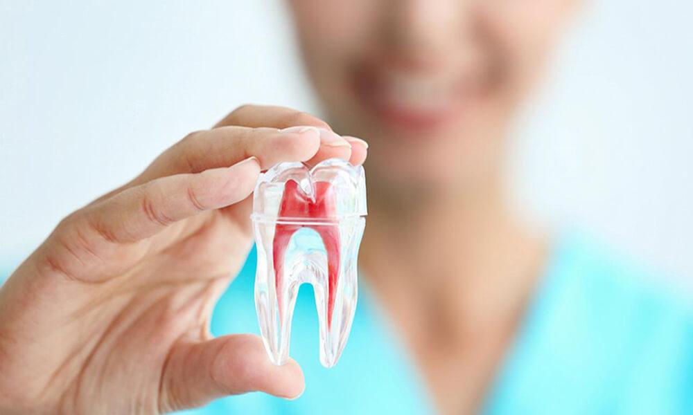 ¿En qué consiste un tratamiento de endodoncia?