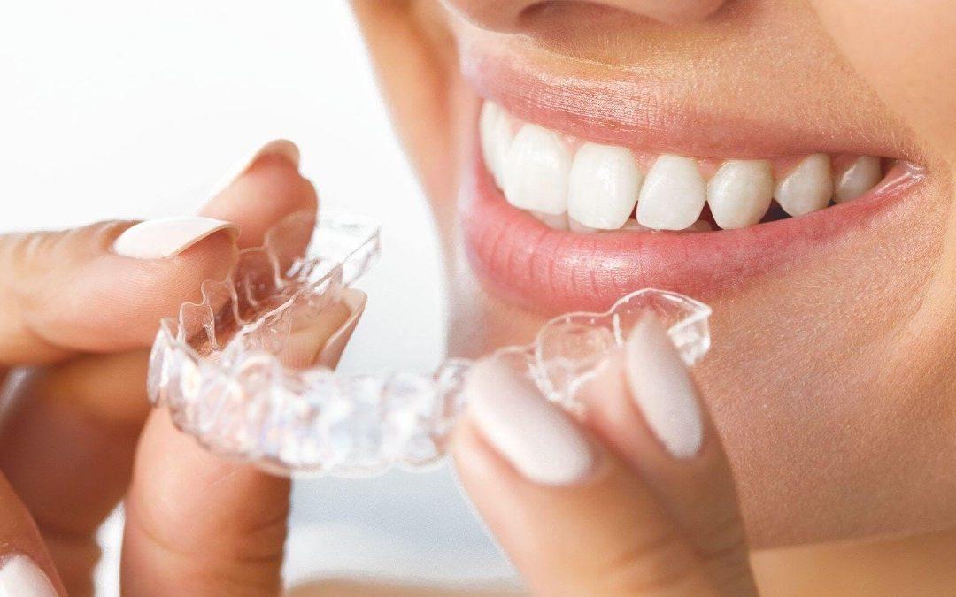 ¿Se produce movimiento de dientes tras la ortodoncia?