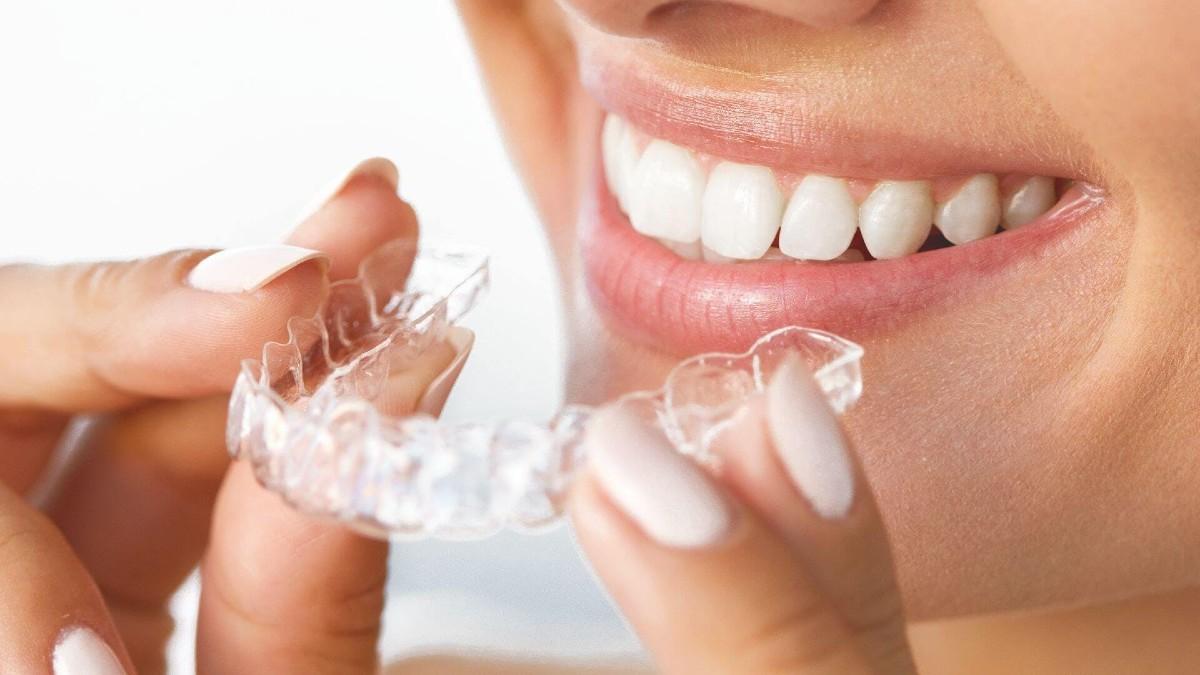 movimiento de dientes tras la ortodoncia