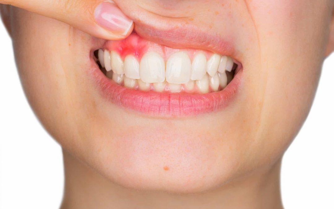 Cómo bajar la inflamación de las encías