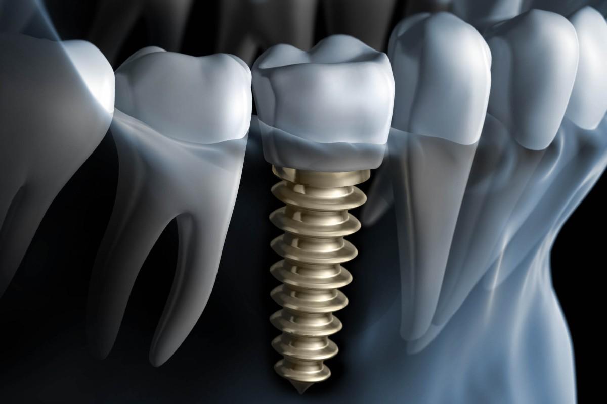 Cómo colocar un implante