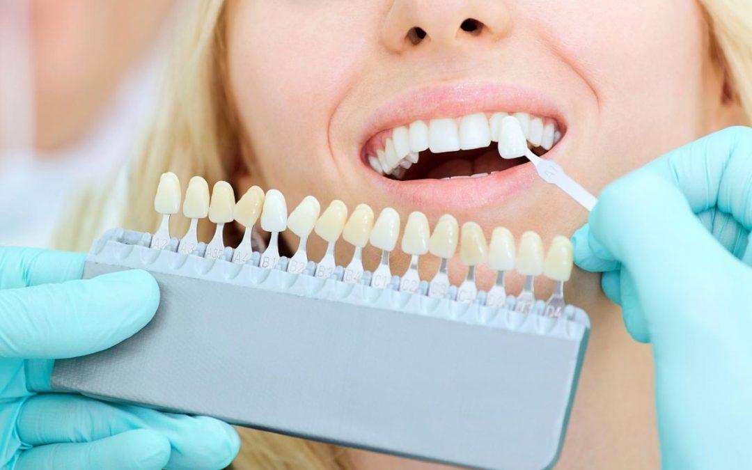 cuidar las carillas dentales