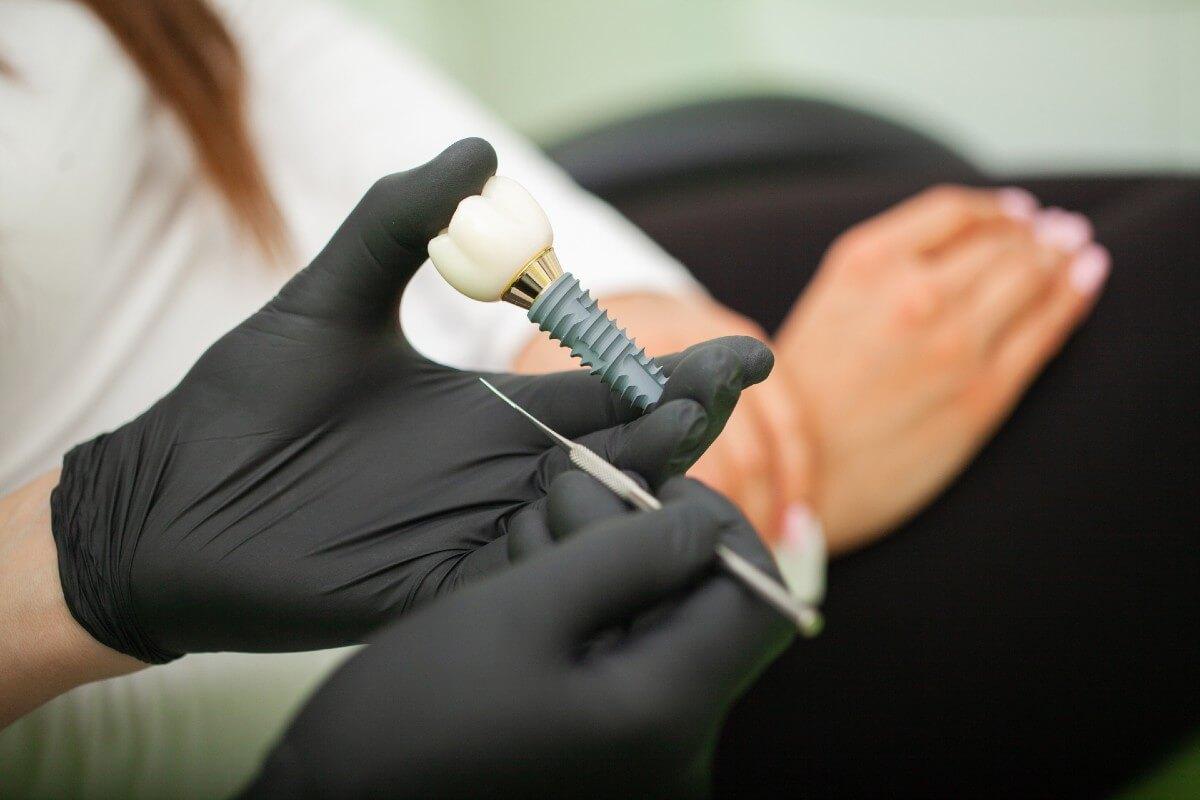 es necesario cambiarse los implantes cada cierto tiempo