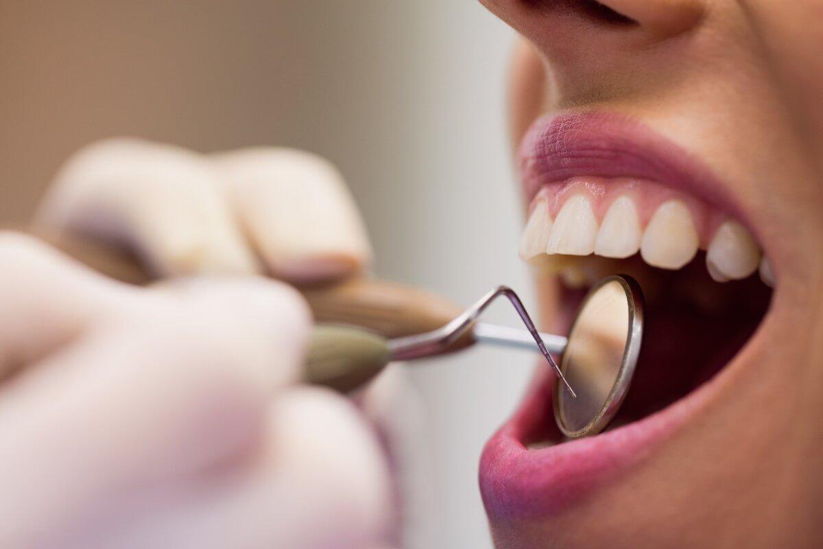 cuando es bueno cambiar de dentista