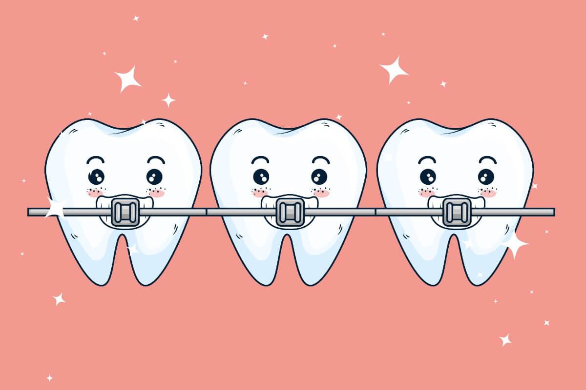 Casos a los que no les funciona la ortodoncia