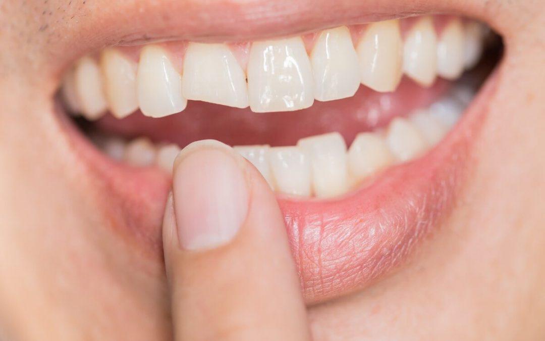 ¿Qué hacer tras un fuerte golpe en los dientes?