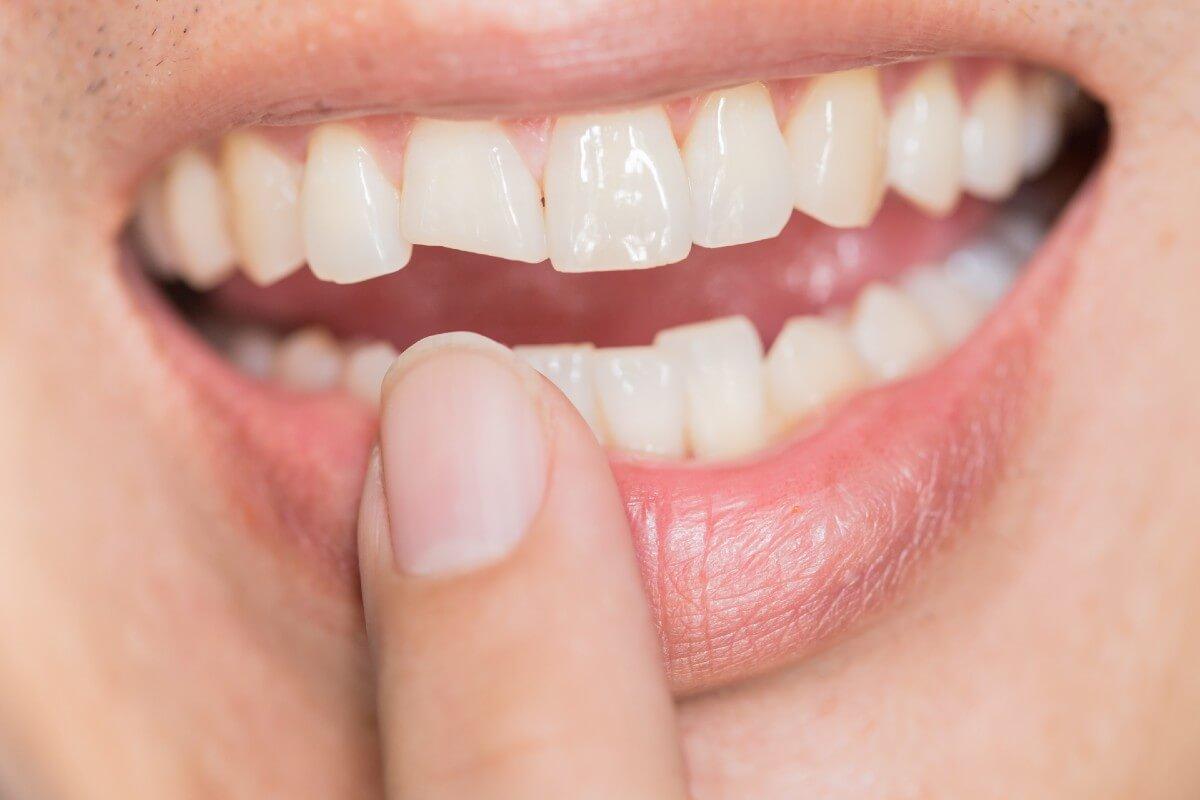 ¿Qué hacer tras un golpe en los dientes?