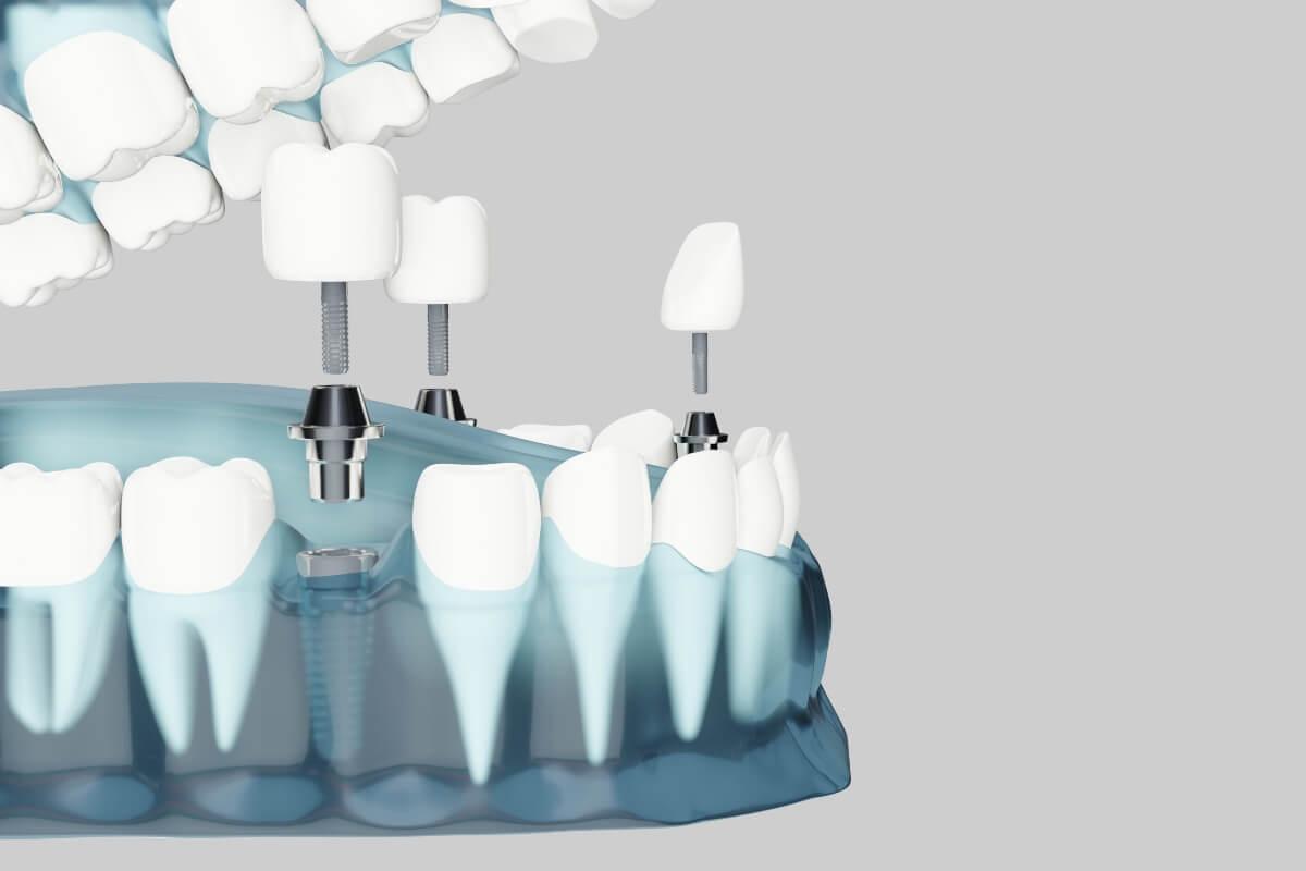 Cuidados que requiere un implante dental